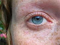 Zaburzenia barwnikowe