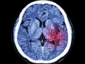 Ostry krwotok śródmózgowy: kontrola ciśnienia tętniczego