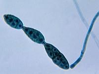 Grzyby mikroskopowe (pleśniowe)