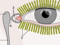 Zapalenie woreczka łzowego