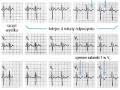 Elektrokardiograficzna próba wysiłkowa (cz. 6)