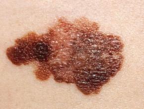 Ipilimumab wydłuża przeżycie chorych na czerniaka wIII stopniu zaawansowania