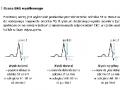 Elektrokardiograficzna próba wysiłkowa (cz. 4)