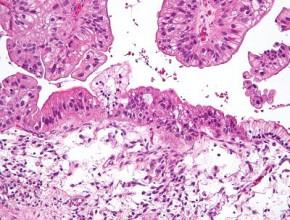 Limfadenektomia aczas przeżycia ukobiet zrakiem jajnika