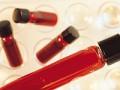 Postępowanie wprzypadku narażenia na zakażenie wirusowe przenoszone drogą krwi