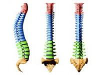 Bóle kręgosłupa acukrzyca