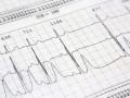 Postępowanie wświeżym zawale serca zuniesieniem odcinka ST. Wytyczne ESC 2017