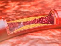 Lecznie farmakologiczne wchorobach tętnic obwodowych