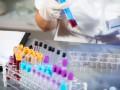 Możliwości wykorzystania badania <sup>18</sup>F-FDG PET-TK wdiagnostyce ileczeniu szpiczaka plazmocytowego/mnogiego oraz nowotworów zkomórek plazmatycznych