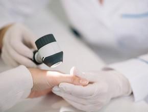 Ipilimumab wleczeniu adiuwantowym chorych na czerniaka wIII stopniu zaawansowania klinicznego