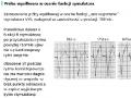 Elektrokardiograficzna próba wysiłkowa (cz. 11)