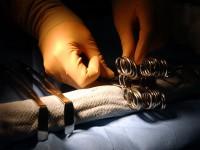 Jak chirurgicznie leczyć otyłość?
