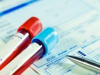 Test wkierunku HIV powinien zrobić każdy
