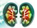 Podsumowanie aktualnych wytycznych European Association of Urology (EAU) dotyczących postępowania wprzypadku raka nerki (2017)  –  część IV