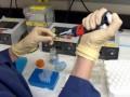 Test na obecność substancji redukujących wkale