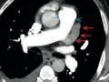 Mężczyzna zprzewlekłą niewydolnością serca imigotaniem przedsionków