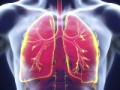 Corticosteroids in the treatment of community-acquired pneumonia