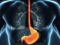 Leczenie pierwotne chorych na wczesne raki przełyku iżołądka - St Gallen 2018. Cz. 1.