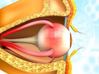 Wewnątrzgałkowe zapalenie nerwu wzrokowego
