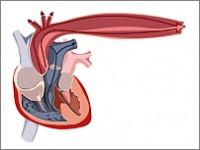 Zasady leczenia choroby wieńcowej