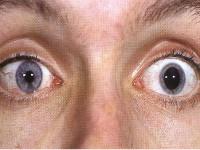 Choroby nerwu okoruchowego (III czaszkowego)