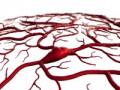 Pacjentka ztrombofilią po udarze mózgu