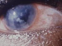 Nieprzejrzysta rogówka (bielmo rogówki, inne zaburzenia przezierności rogówki)