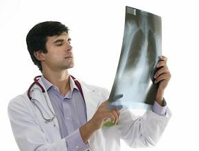 LDCT wbadaniach przesiewowych wkierunku wczesnego wykrywania raka płuca wPolsce