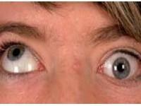Wybrane zespoły wrodzonych zaburzeń ruchów oczu