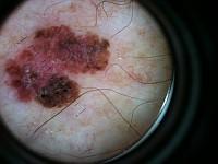 Badanie dermatoskopowe
