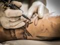 Zakażenia <i>Mycobacterium abscessus</i> związane z&nbsp;wykonywaniem tatuaży