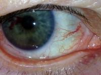 Krew wprzedniej komorze oka (krwistek)