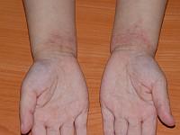 Atopowe zapalenie skóry (AZS) udzieci