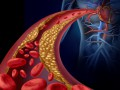 Nuevas estrategias de terapia hipolipemiante