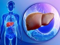 W jakich sytuacjach zamiast biopsji wątroby można wykonać badanie elastograficzne?