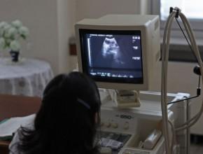 Postępowanie wprzypadku torbieli jajnika ukobiet po menopauzie. Wytyczne RCOG 2016