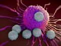 Leczenie ŻChZZ uchorych na nowotwory wszczególnych sytuacjach (cz. 1)