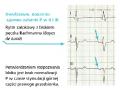 Ocena morfologiczna elektrokardiogramu (cz. 1)