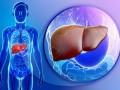 Guías 2018: enfermedades hepáticas relacionadas con el consumo de alcohol
