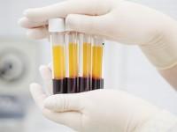 Badanie ANCA we krwi
