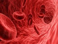Ultrasonografia wewnątrznaczyniowa naczyń wieńcowych
