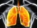 Radiologiczne cechy przewlekłego zakrzepowo-zatorowego nadciśnienia płucnego upacjentów zpodejrzeniem ostrej zatorowości płucnej