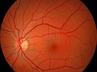 Zapalenie pozagałkowe nerwu wzrokowego
