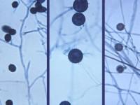 Histoplazmoza