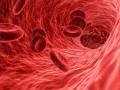 Zabójczy duet - hiperlipidemia inadciśnienie