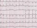 Postępowanie wmigotaniu przedsionków. Aktualizacja 2012 wytycznych European Society of Cardiology
