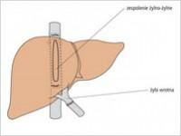 Przeszczep wątroby