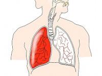 Kiedy pacjent, który przebył ostrą zatorowość płucną powinien udać się do kardiologa?