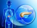 mFOLFIRINOX jako nowy standard wleczeniu uzupełniającym chorych po radykalnej resekcji raka gruczołowego trzustki