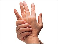 Ból ręki inadgarstka